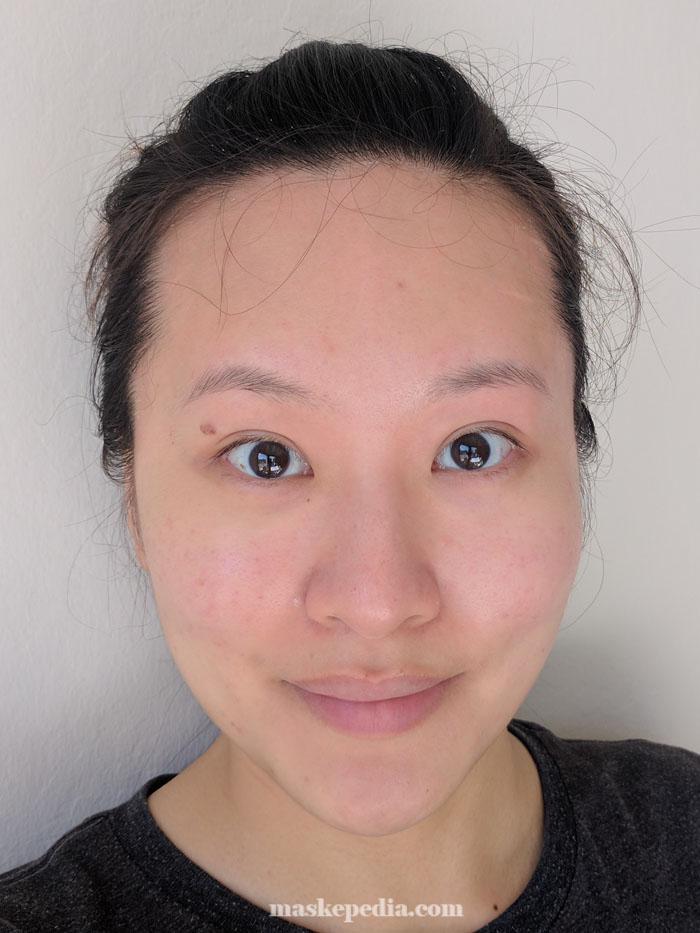 Bano Anti-Oxidant Injection Mask